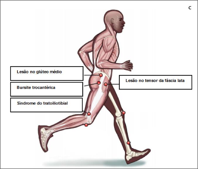 Síndrome do trato ilio tibial, lesão no glúteo médio, bursite trocantérica, lesão no tensor da fáscia lata
