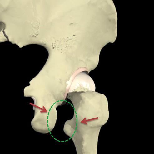Fig 2 . Vista posterior da região do quadril identificando o túnel isquiofemoral, localizado entre as regiões do isquio e trocânter menor (setas vermelhas).
