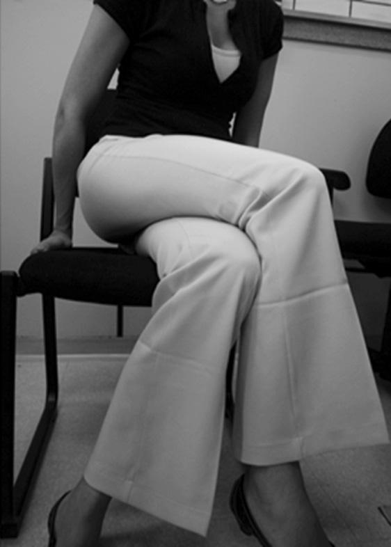 Fig 4. Paciente sentada apoiada no lado assintomático. Observe que paciente não mantém apoio no lado afetado.