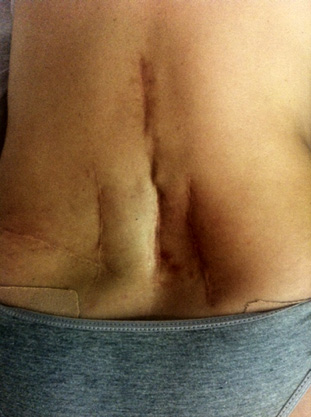 Figura 5. Figura mostrando várias incisões na coluna devido diagnóstico impreciso e consequentemente, tratamento inadequado.