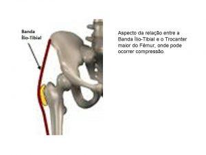 Pressão exagerada entre a banda ílio-tibial e o trocânter podem provocar inflamação