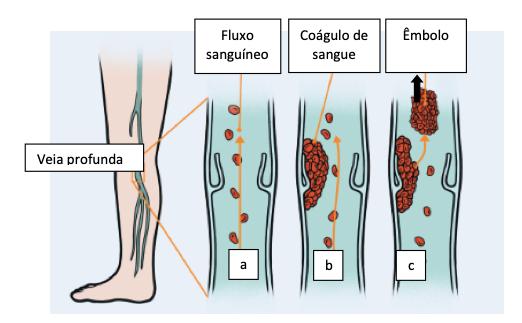 Figura 14. (a) As veias da perna contêm pequenas válvulas que ajudam a manter o sangue se movendo em direção ao coração. Lesões, imobilidade e outros fatores podem levar à formação de um coágulo sanguíneo (b) dentro de uma veia da perna. Essa alteração é conhecida como trombose venosa profunda. Um coágulo pode se deslocar (c) (conhecido como embolia) e entra na circulação. Se alojar nos pulmões, pode causar uma embolia pulmonar letal.