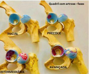 Quadril com artrose - fases