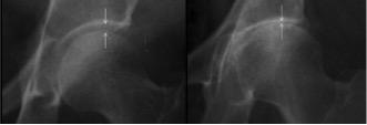 Radiografia do quadril com osteoartrose